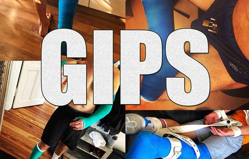 Gips - Copyright 2020, fesselblog.de