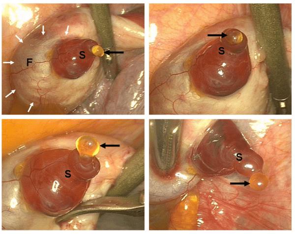 Ovulação Laparoscopia