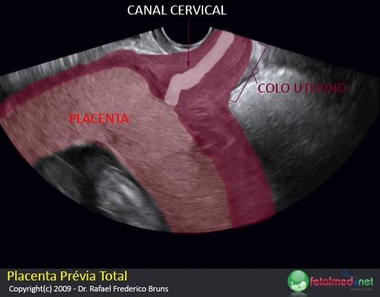 Placenta Prévia Total