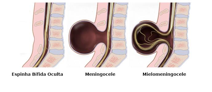 Tipos de defeito de coluna