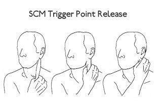 SCM trigger point release