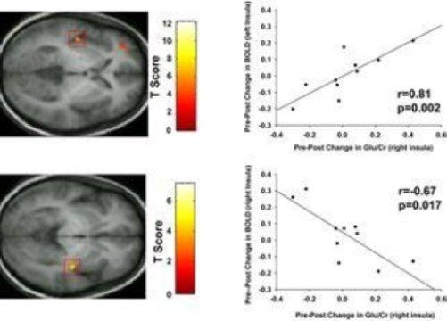 fibromyalgia study