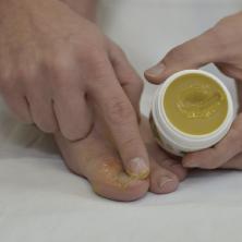 Die Salbe von gribka der Nägel der Hände