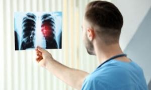 Read more about the article Οι ουσίες που καταστρέφουν τους πνεύμονες – Δείτε σε ποια προϊόντα βρίσκονται