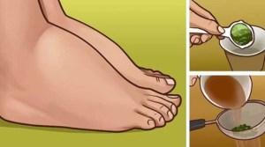 Το Πιο Ισχυρό Φυσικό Φάρμακο Για Πρησμένα Πόδια & Αστραγάλους