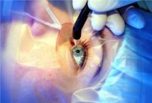 Η αφαίρεση καταρράκτη μειώνει τον κίνδυνο πρόωρου θανάτου