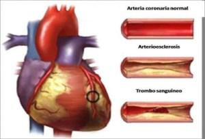 Βουλωμένα αγγεία, Αρτηριοσκλήρωση: Αιτίες, Συνέπειες και Αντιμετώπιση