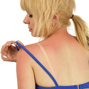 Read more about the article Έγκαυμα από τον ήλιο; Αντιμετώπισε το εναλλακτικά!