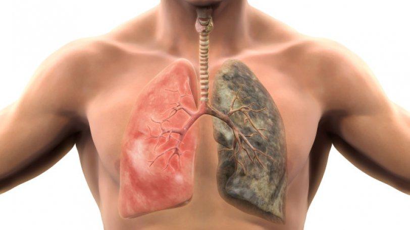 Θαυματουργό τσάι θεραπεύει τα πνευμόνια για πάντα!