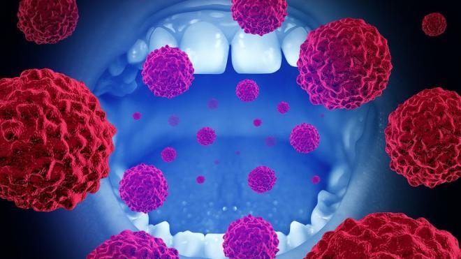 Καρκίνος στόματος: Τα σημάδια που δεν πρέπει να αμελείτε