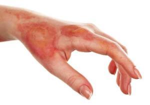 Συμβουλές και φυσικές θεραπείες για την αντιμετώπιση των εγκαυμάτων