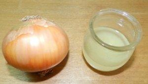Κρεμμύδι και λευκό ξίδι: Φυσική θεραπεία για τους κάλους στα πόδια