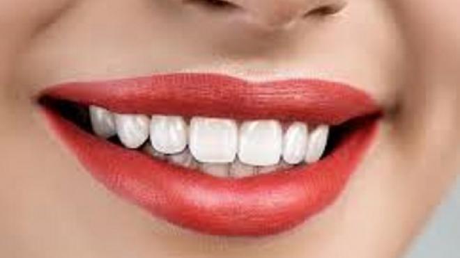 Αυτό είναι το απόλυτο τρικ για να κάνεις τέλεια λεύκανση δοντιών στο σπίτι