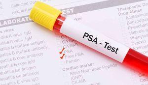 Τι πρέπει να ξέρουν όλοι οι άνδρες για το PSA (ειδικό προστατικό αντιγόνο)