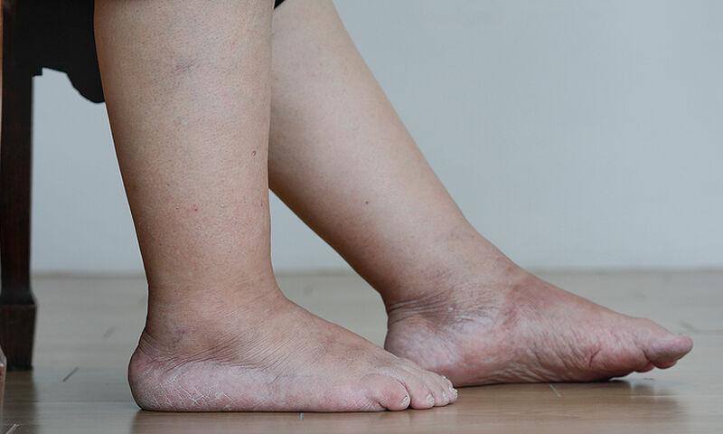 Read more about the article Πρησμένα πόδια: Τι να κάνετε για να υποχωρήσει το οίδημα (εικόνες)