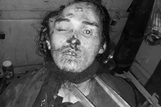 GRAPHIC PHOTOS: Terror leaders Omar Maute, Isnilon Hapilon killed in Marawi City