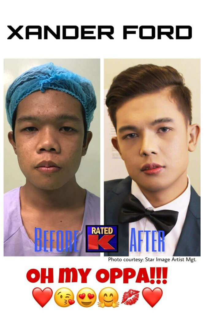 marlou to xander ford before and after