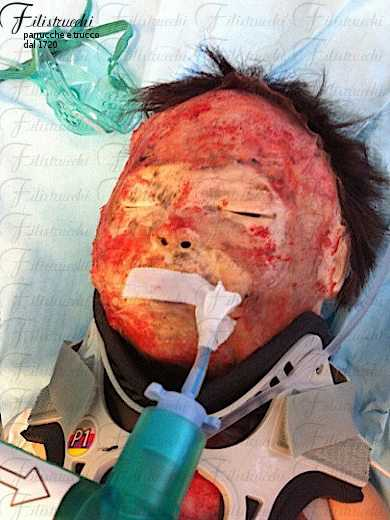 Immagine che descrive la simulazione di una grave ustione su un manichino ad alta fedeltà rappresentante un neonato