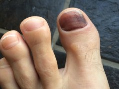 Ten awful things about running - Black Toenails
