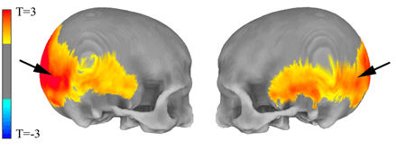 Bits of the skull whose variation is correlated with Neanderthal genes
