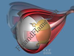 Ocular Melanoma Plaque Therapy