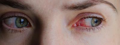 Blocked Tear Duct Symptoms Causes Treatment And