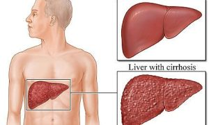 liver-infection