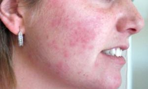 Home-Remedies-To-Treat-Rashes-On-Face