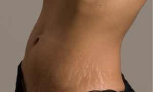 get-rid-of-stretch-marks