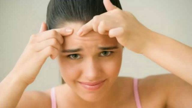 7 Best Home Remedies For Acne Overnight