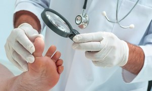 6 Effective Home Remedies For Nail Fungus