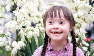 Common Causes Of Downs Syndrome