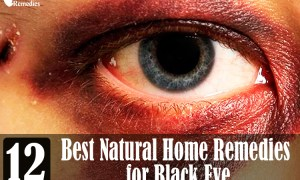 12-best-natural-home-remedies-for-black-eye