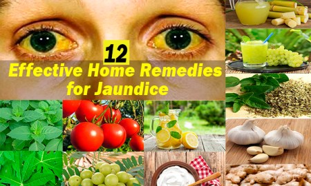 12-effective-home-remedies-for-jaundice