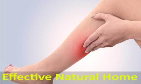 9 Effective Natural Home Remedies for Phlebitis - Causes, Symptoms and Prevention Tips