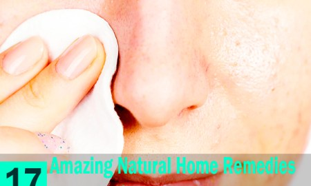 17-Amazing-Natural-Home-Remedies-for-Blackheads
