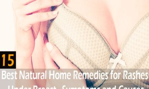 15-best-natural-home-remedies-for-rashes-under-breast
