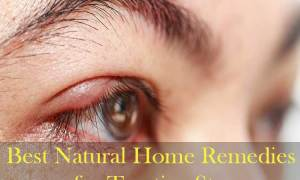 11-Best-Natural-Home-Remedies-for-Treating-Stye