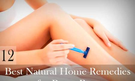 12-Best-Natural-Home-Remedies-for-Razor-Burn
