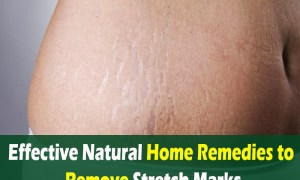 Effective-Natural-Home-Remedies-to-Remove-Stretch-Marks