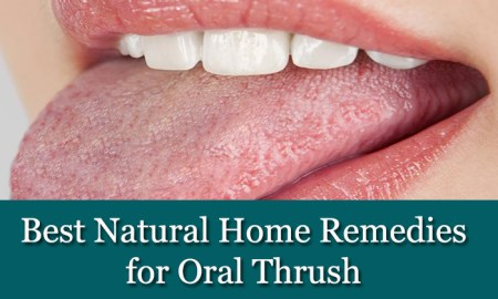 Best-Natural-Home-Remedies-for-Oral-Thrush
