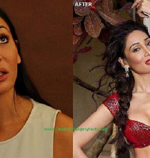 Sofia Hayat Bollywood Actress Plastic Surgery