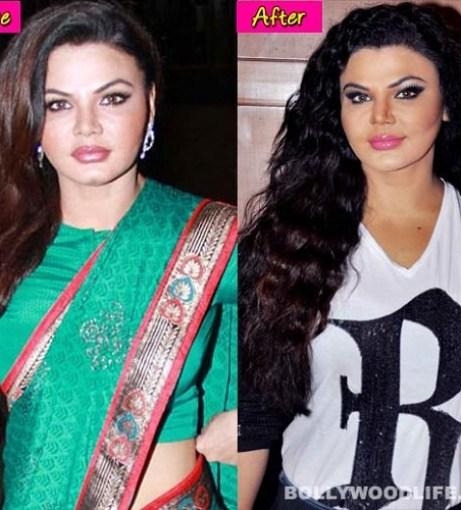Rakhi Sawant Bollywood Actress Plastic Surgery