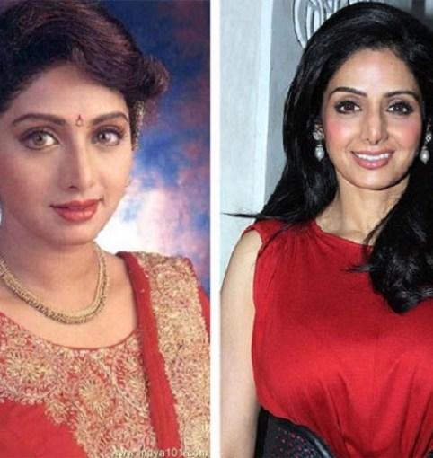 Sridevi Bollywood Actress Plastic Surgery