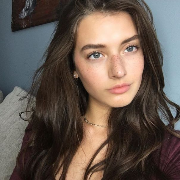 jessica-clements-freckles