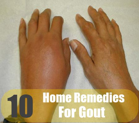 10 Home Remedies For Gout