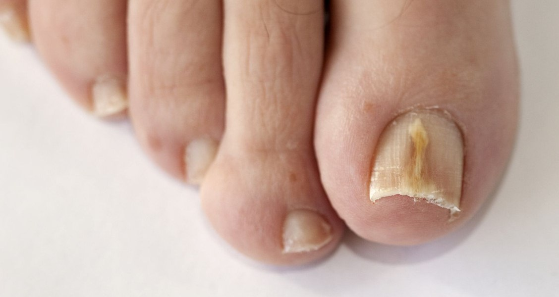 8 Home Remedies For Fungal Toenail Infection - Natural Treatments ...