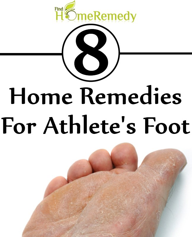 Magnificent 8 Home Remedies For Athletes Foot Natural Treatments Download Free Architecture Designs Scobabritishbridgeorg