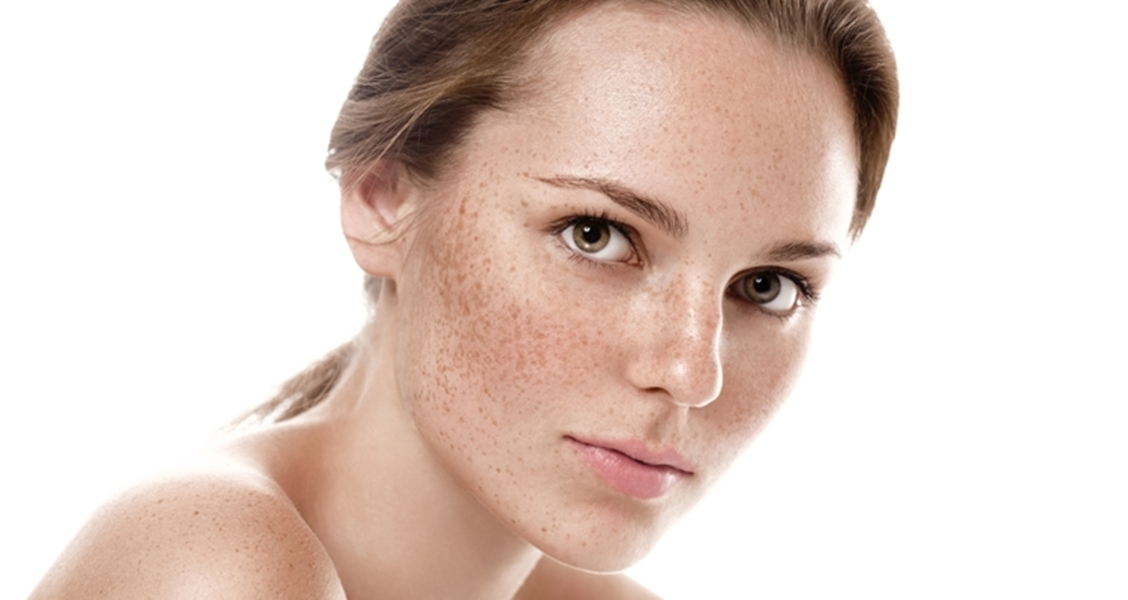 9 Best Effective Home Remedies For Skin Pigmentation