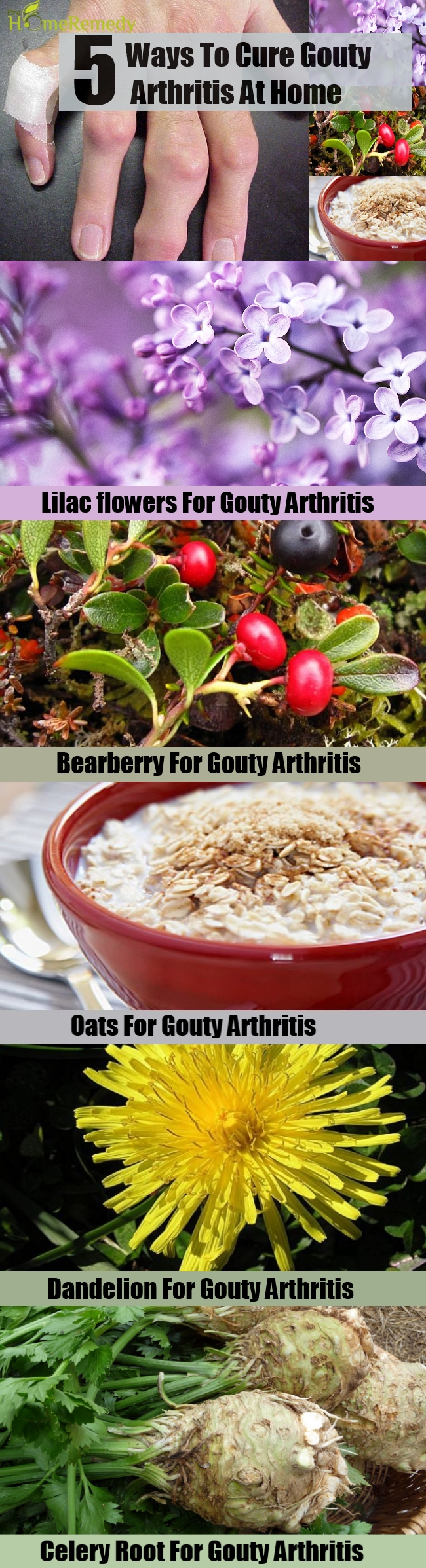 5 Ways To Cure Gouty Arthritis At Home